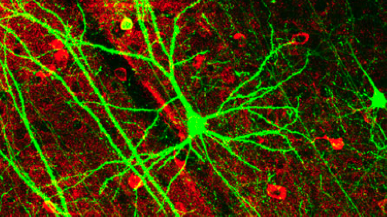 gfp neurons